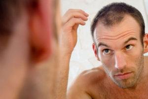 Alopecia areata :  Tratamentos , Causas  , Tem Cura ?!