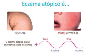 Eczema atópico ou alérgica ? Entenda os Sintomas , causas e tratamento