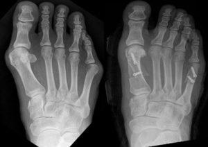 Cirurgia de Joanete: Doi?| Preço | Riscos e Recuperações
